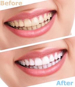 Teeth whitening procedures in La Mesa