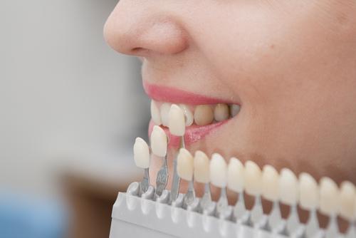 Dental teeth