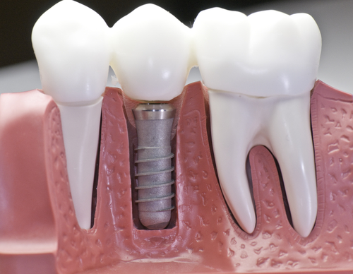 Dental Implants (Placement and Restoration)