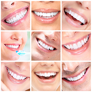 Porcelain Veneers, cosmetic dentistry